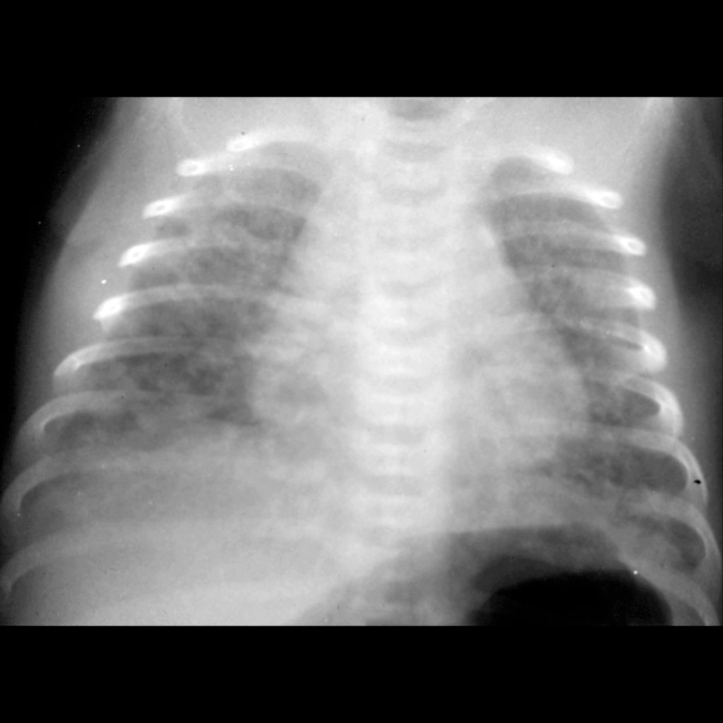 CXR of meconium aspiration syndrome