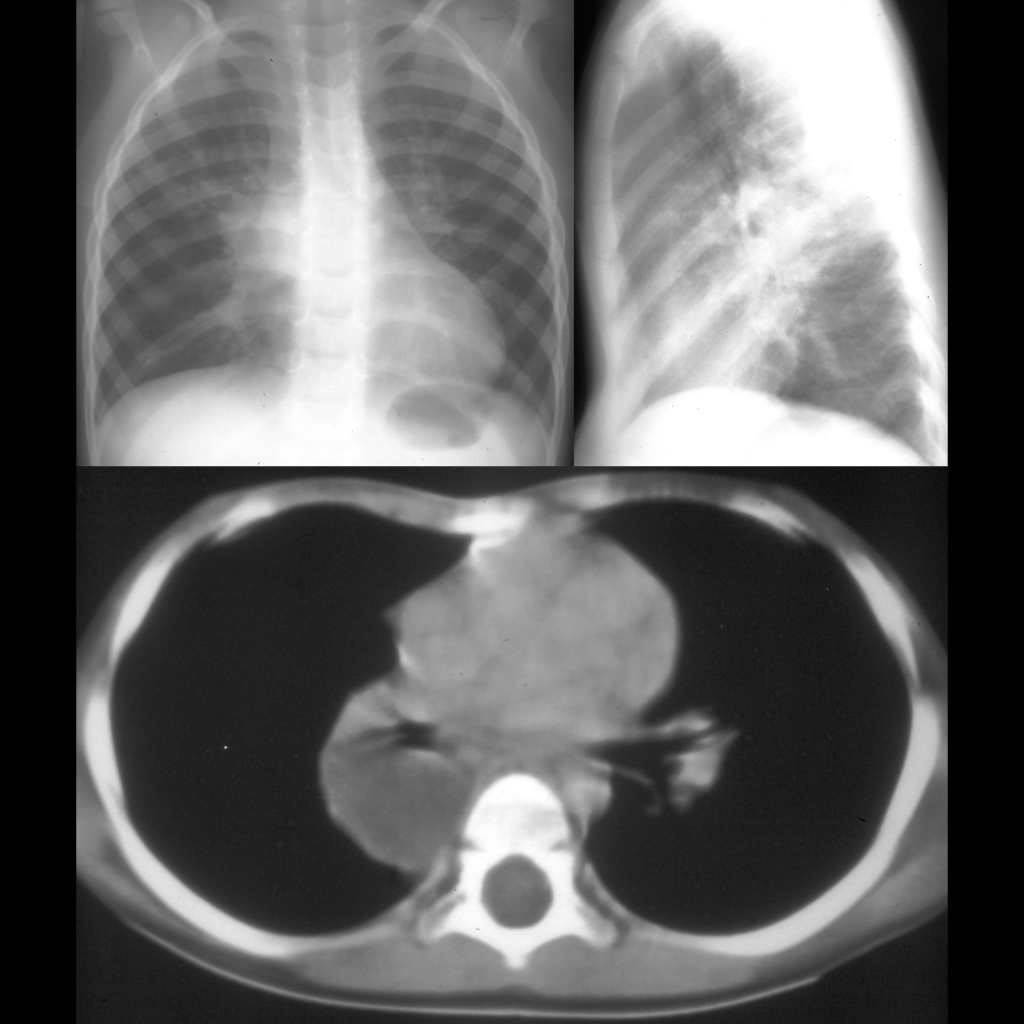 CXR and CT of esophageal duplication