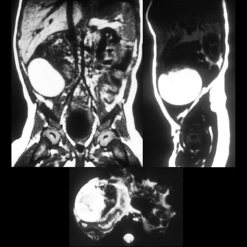 MRI of ovarian torsion