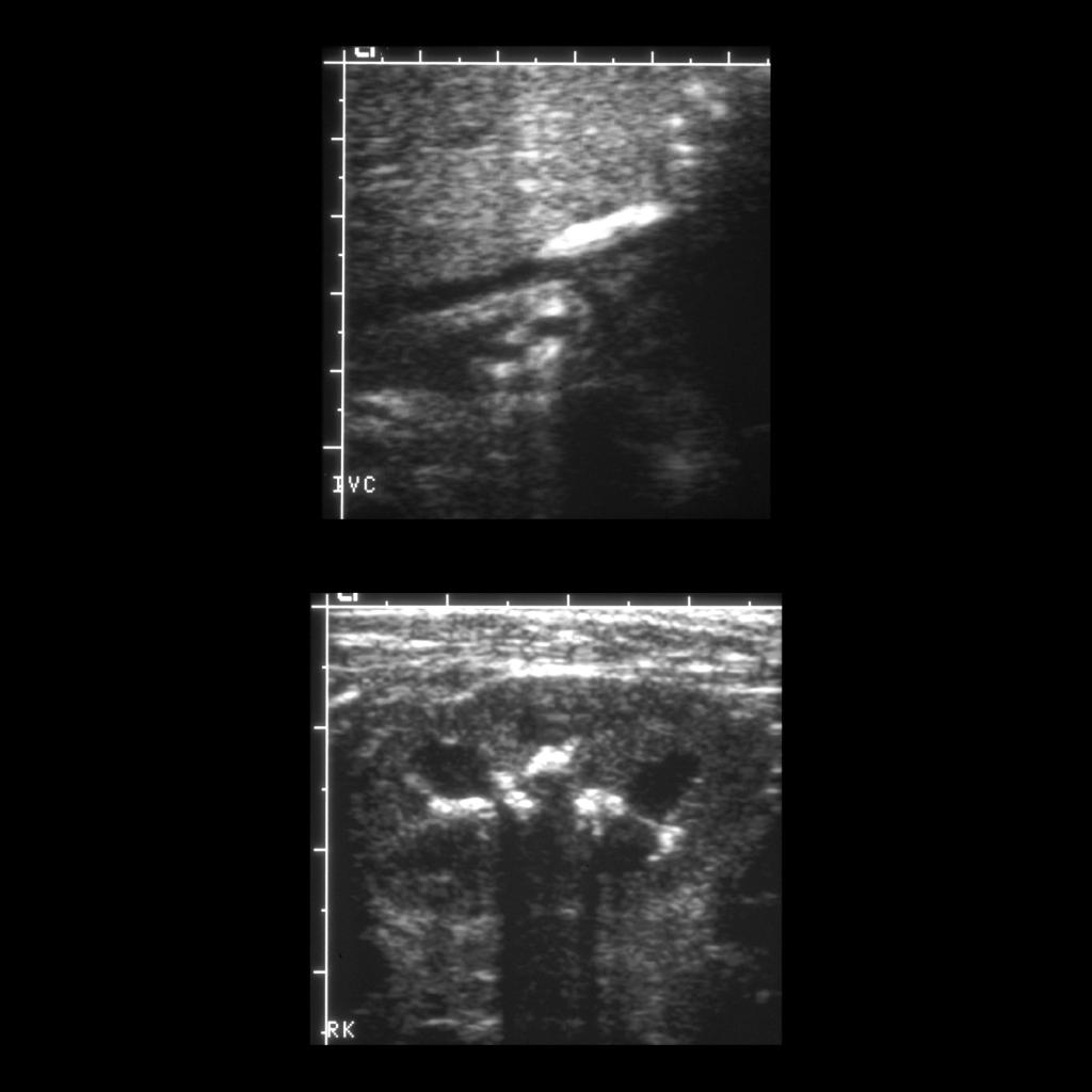 US of renal vein thrombosis