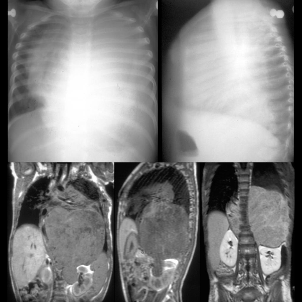 CXR and MRI of neuroblastoma