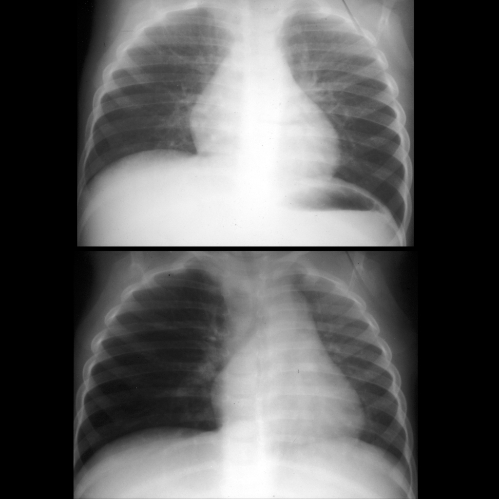 CXR of airway foreign body