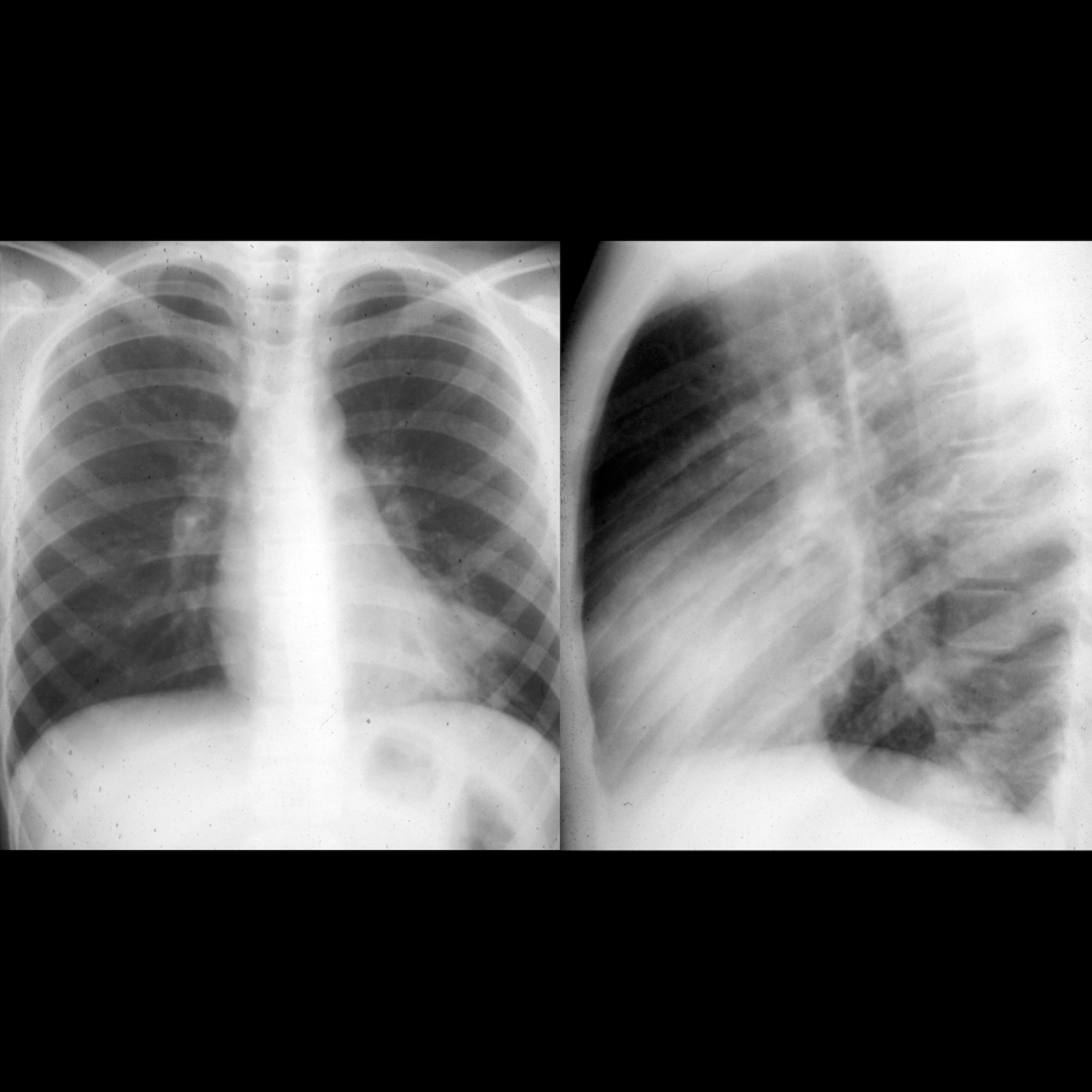 CXR of bronchiectasis