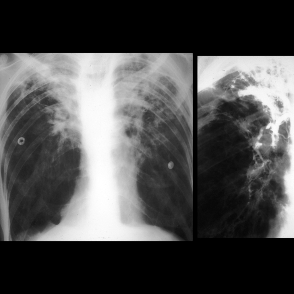 CXR and angiogram of pulmonary hemorrhage in cystic fibrosis