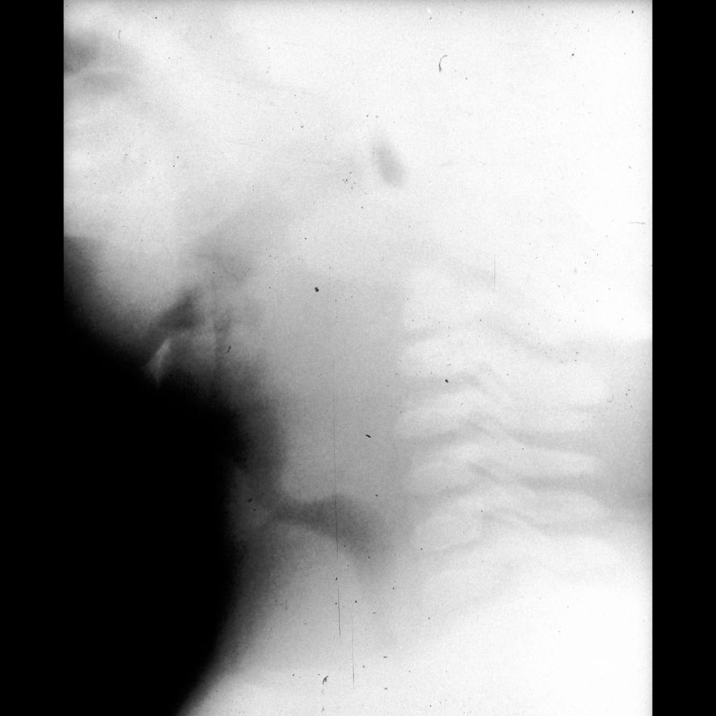 Radiograph of normal airway