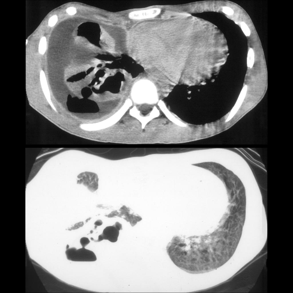 CT of bronchopleural fistula