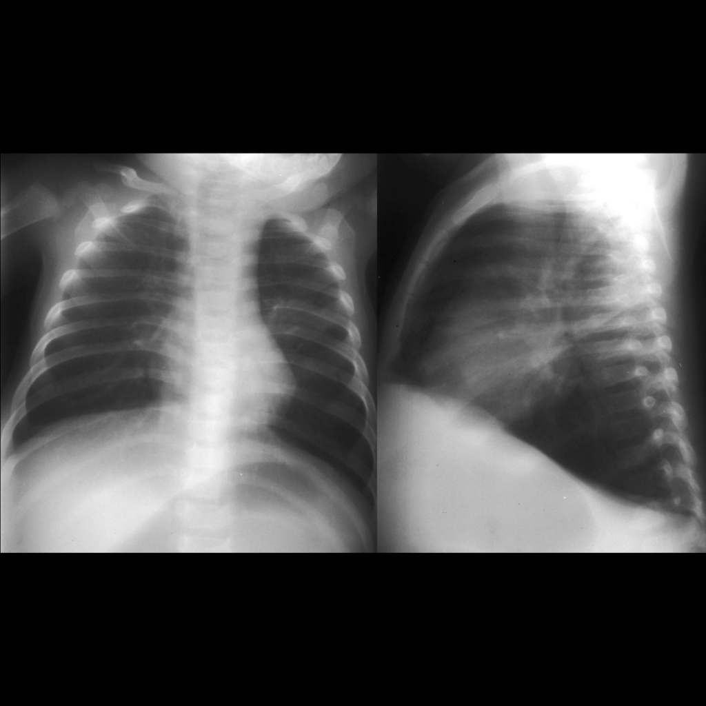 CXR of respiratory syncytial virus pneumonia