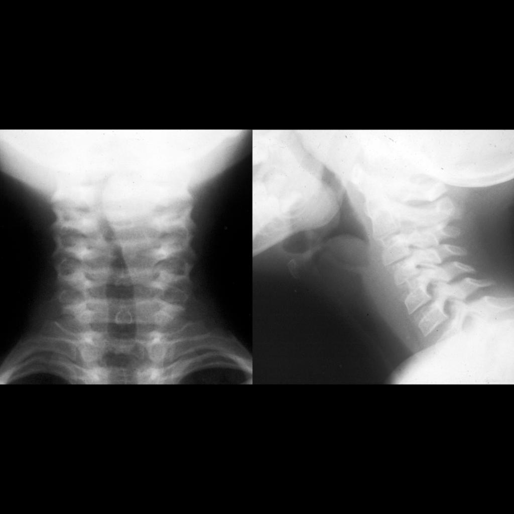 Radiograph of aryepilottic fold cyst