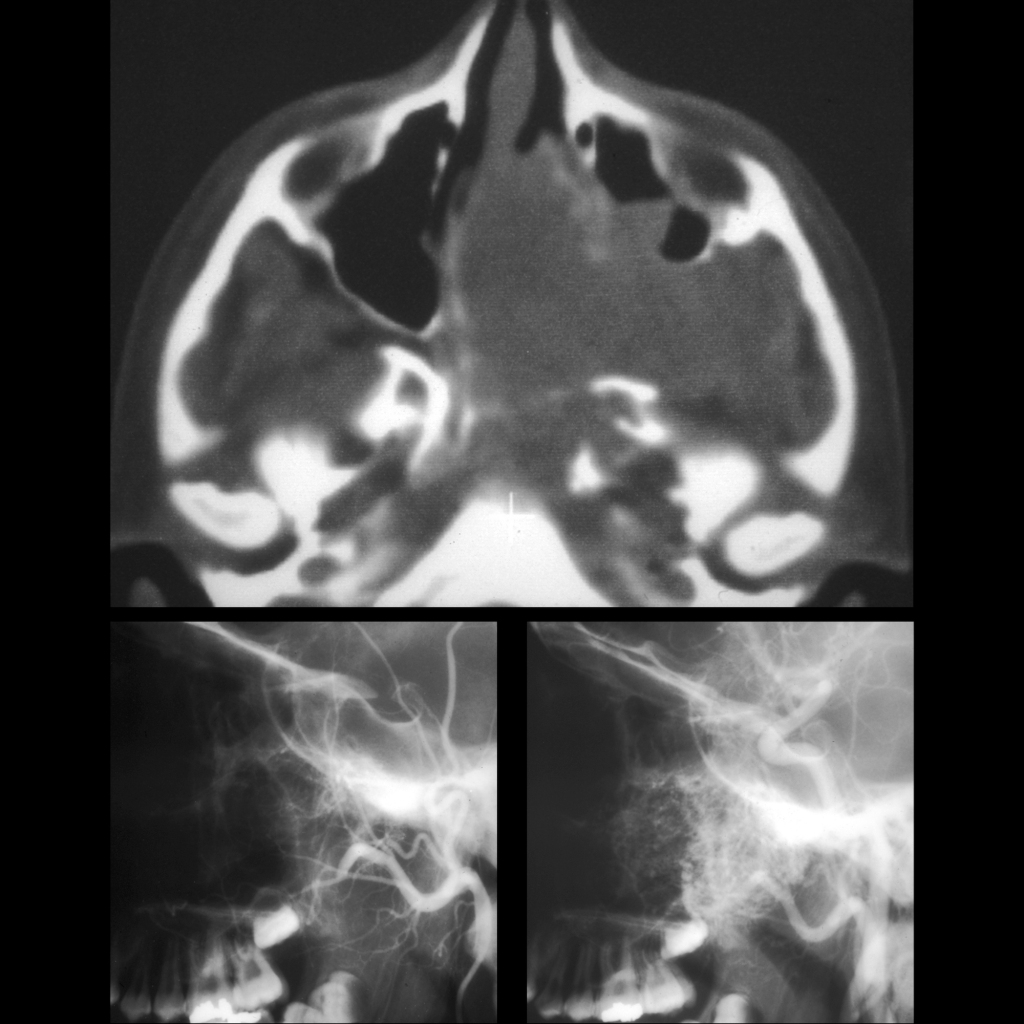 CT and angiogram of juvenile nasopharyngeal angiofibroma