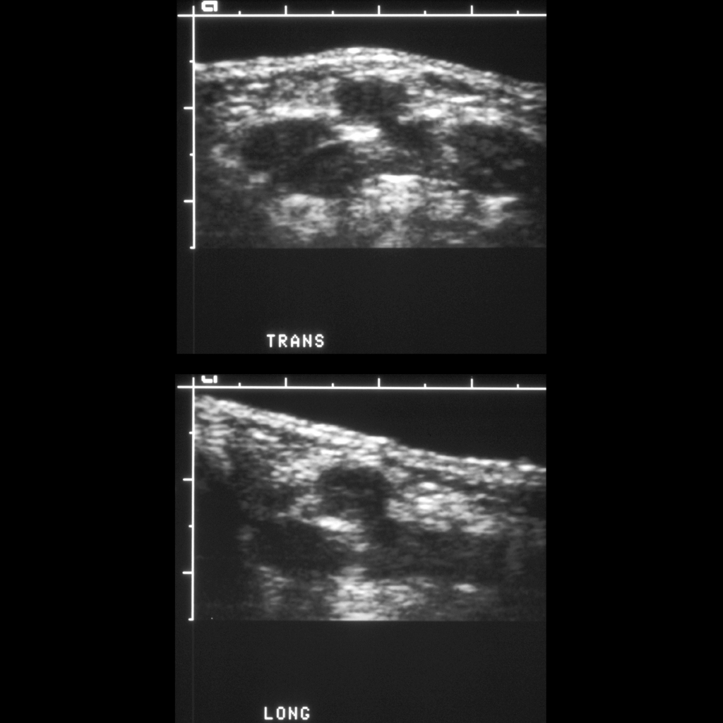 US of thyroglossal duct cyst