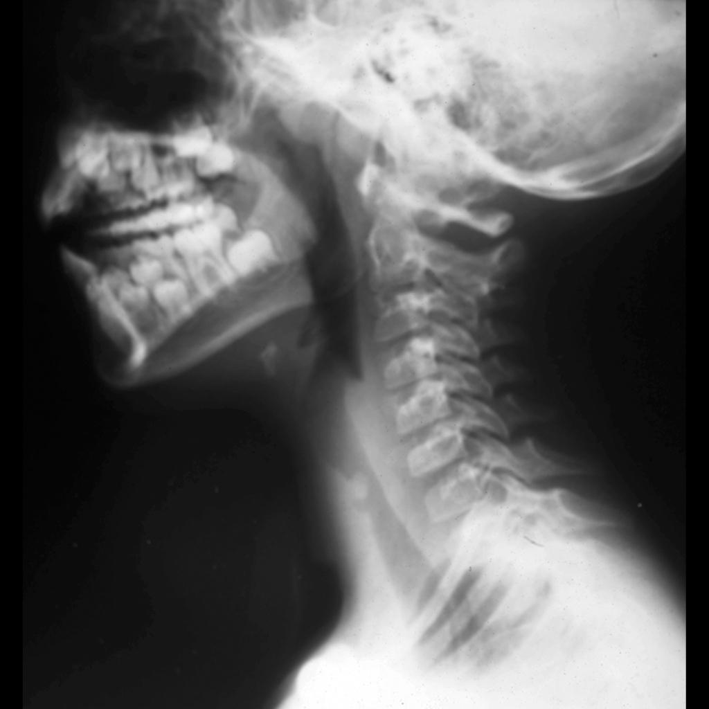 Radiograph of tracheal granuloma