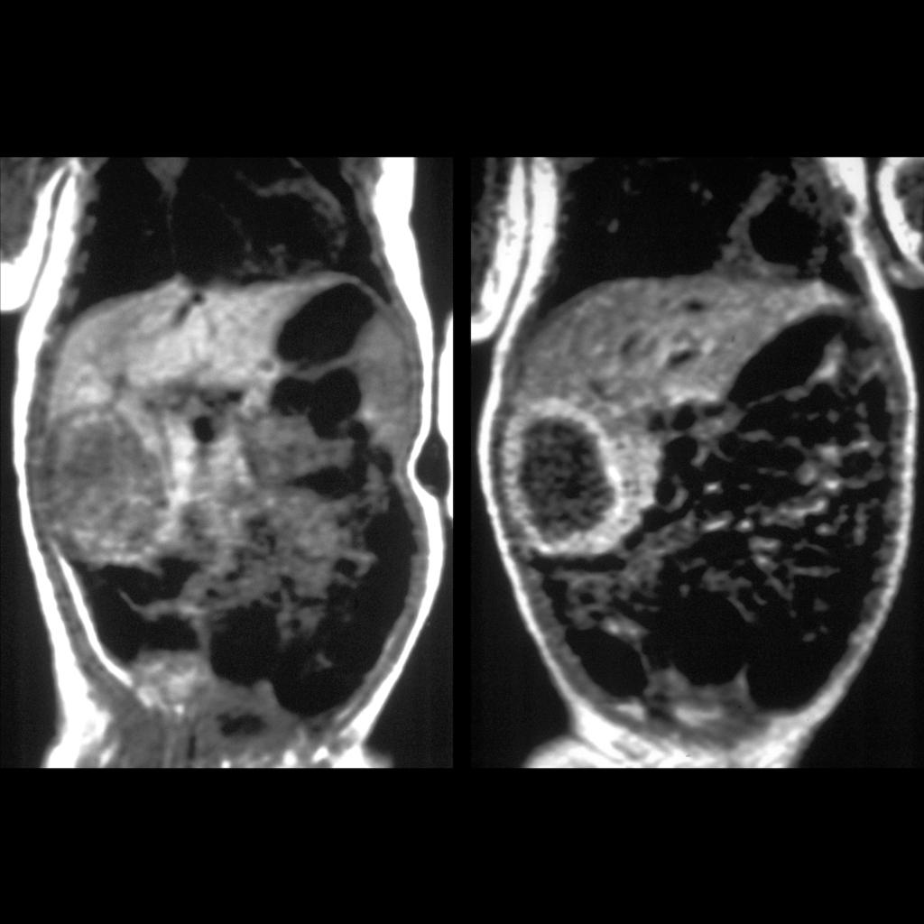 MRI of liver hemangioma