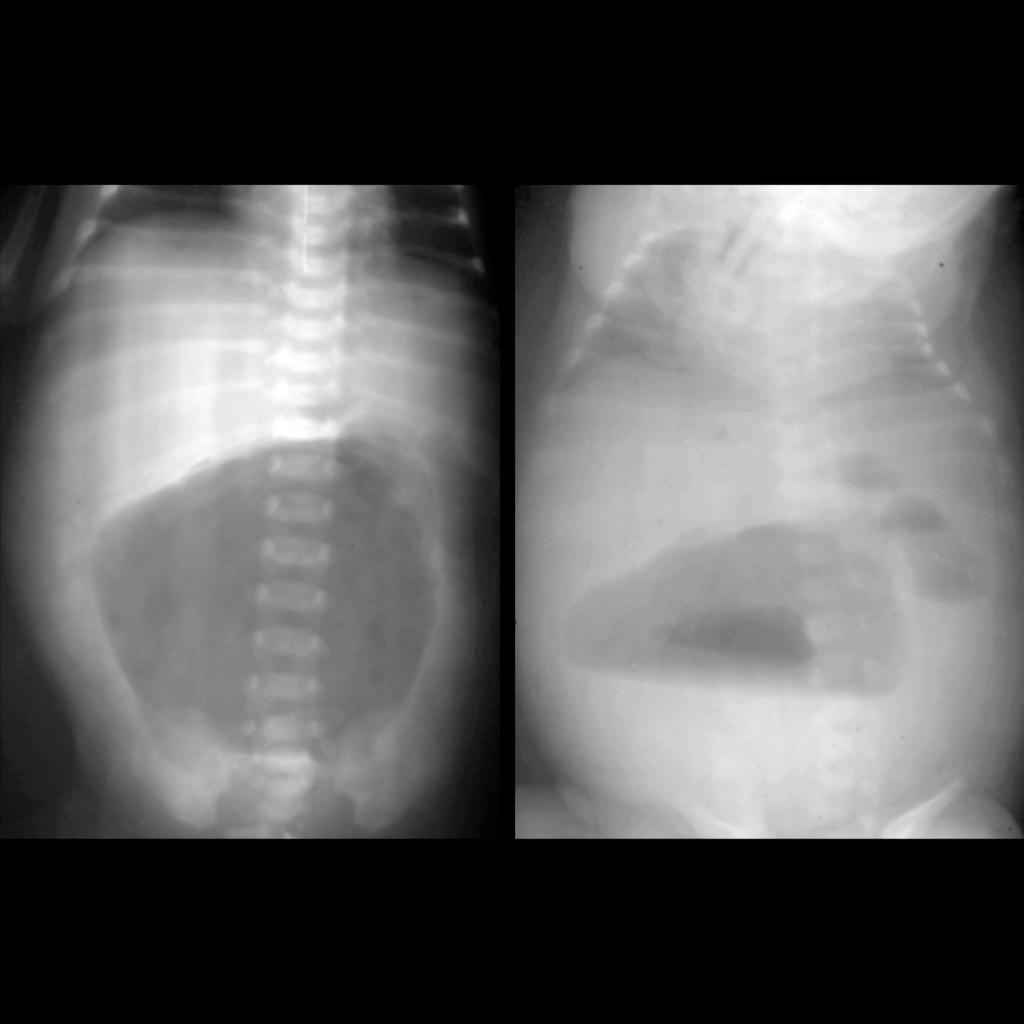 AXR of pneumoperitoneum