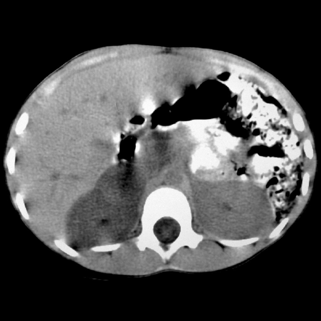 CT of pheochromocytoma