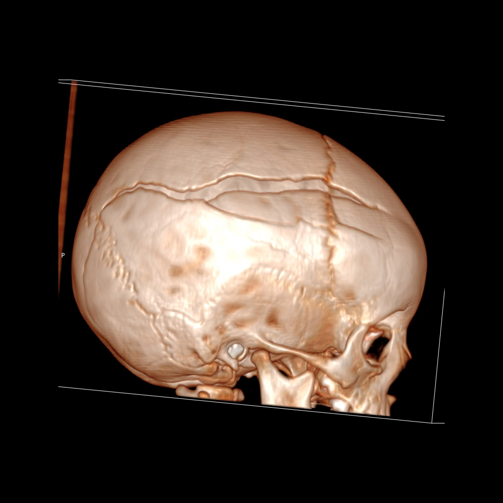 CT of a diastatic skull fracture