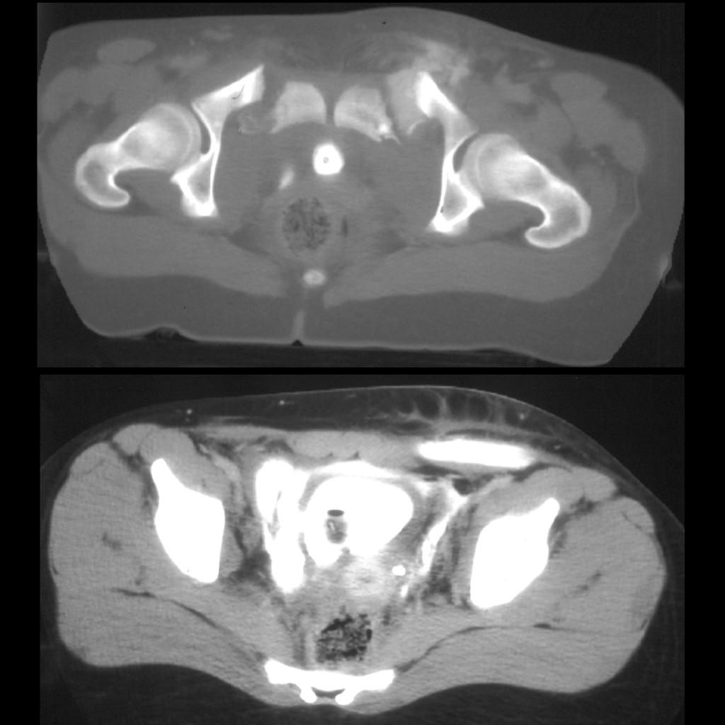 CT of bladder trauma / bladder perforation