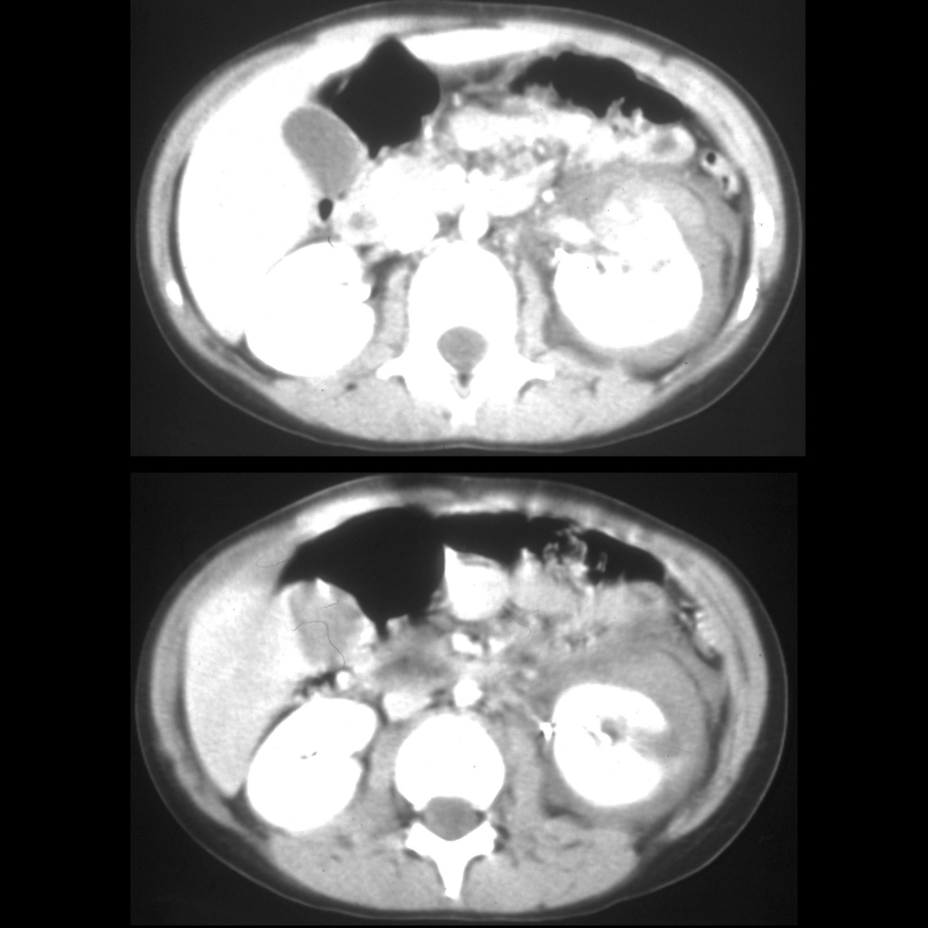 CT of renal trauma / renal laceration