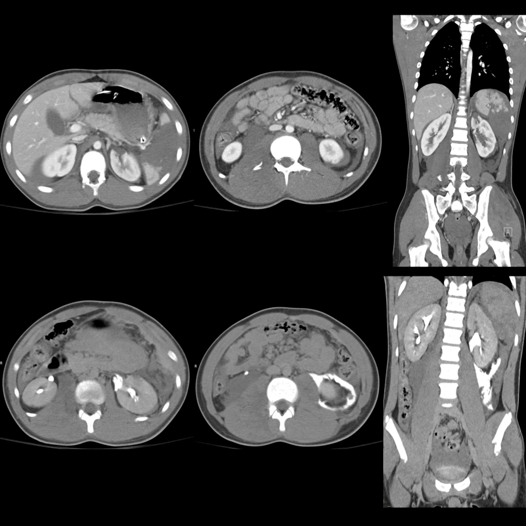 CT of renal trauma / renal laceration and ureteral trauma / ureteral transection and splenic trauma / splenic laceration