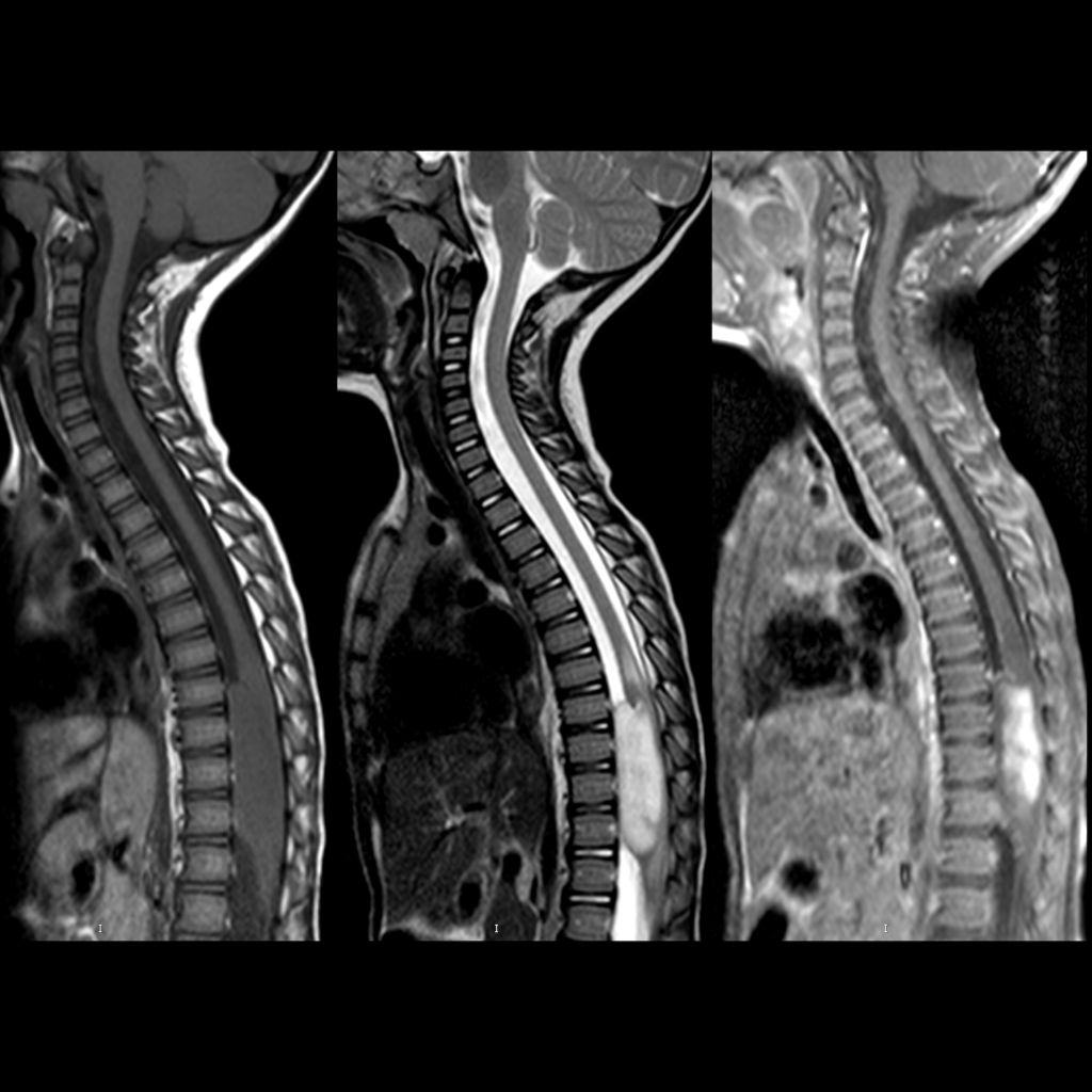 MRI of astrocytoma of spinal cord