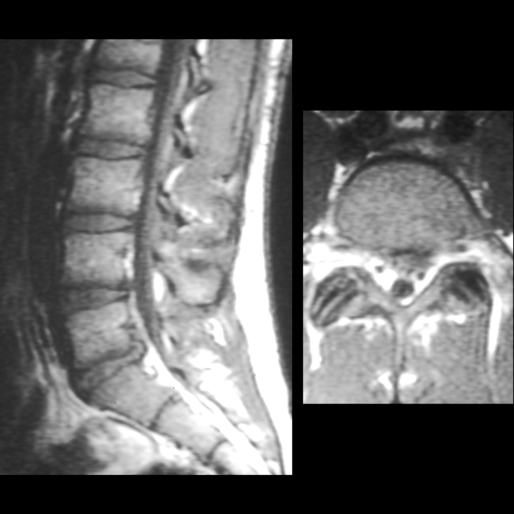 MRI of disc herniation