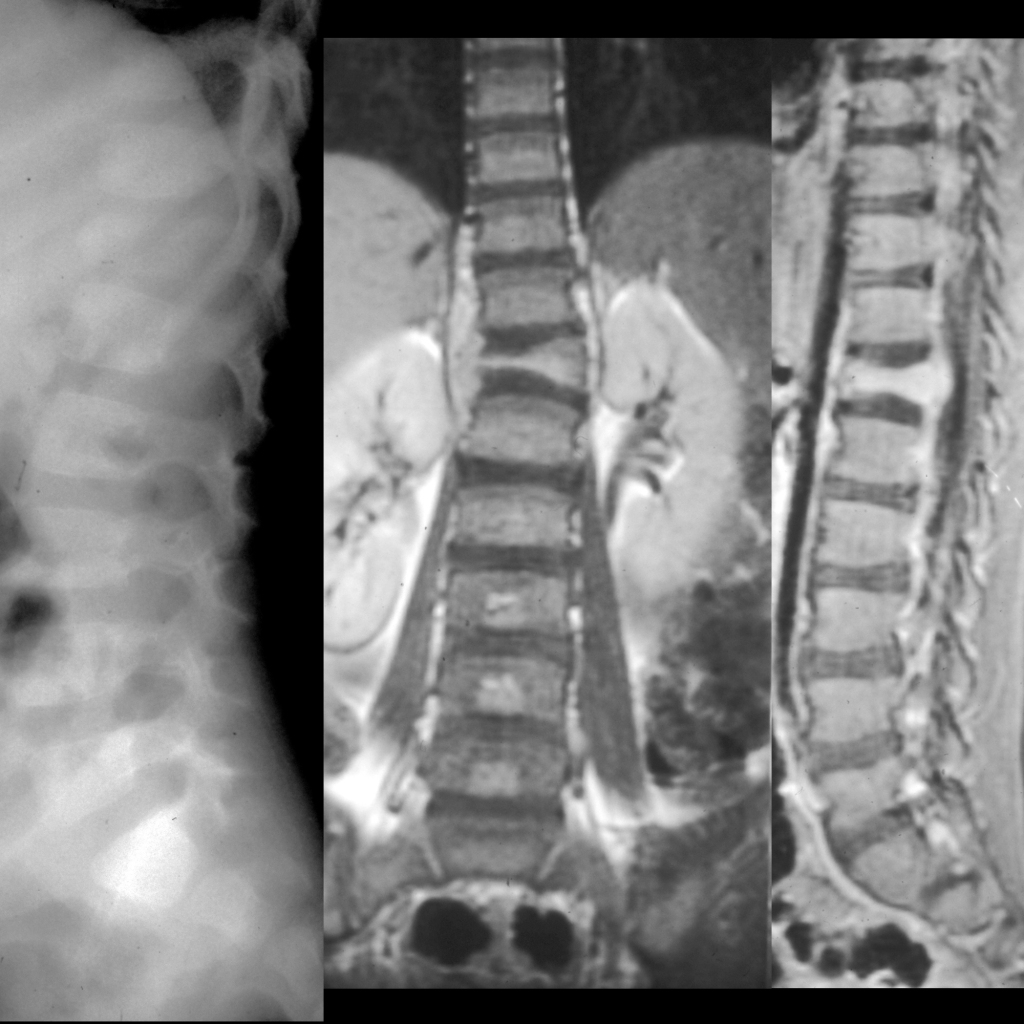 Radiograph and MRI of Langerhans cell histiocytosis of the spine