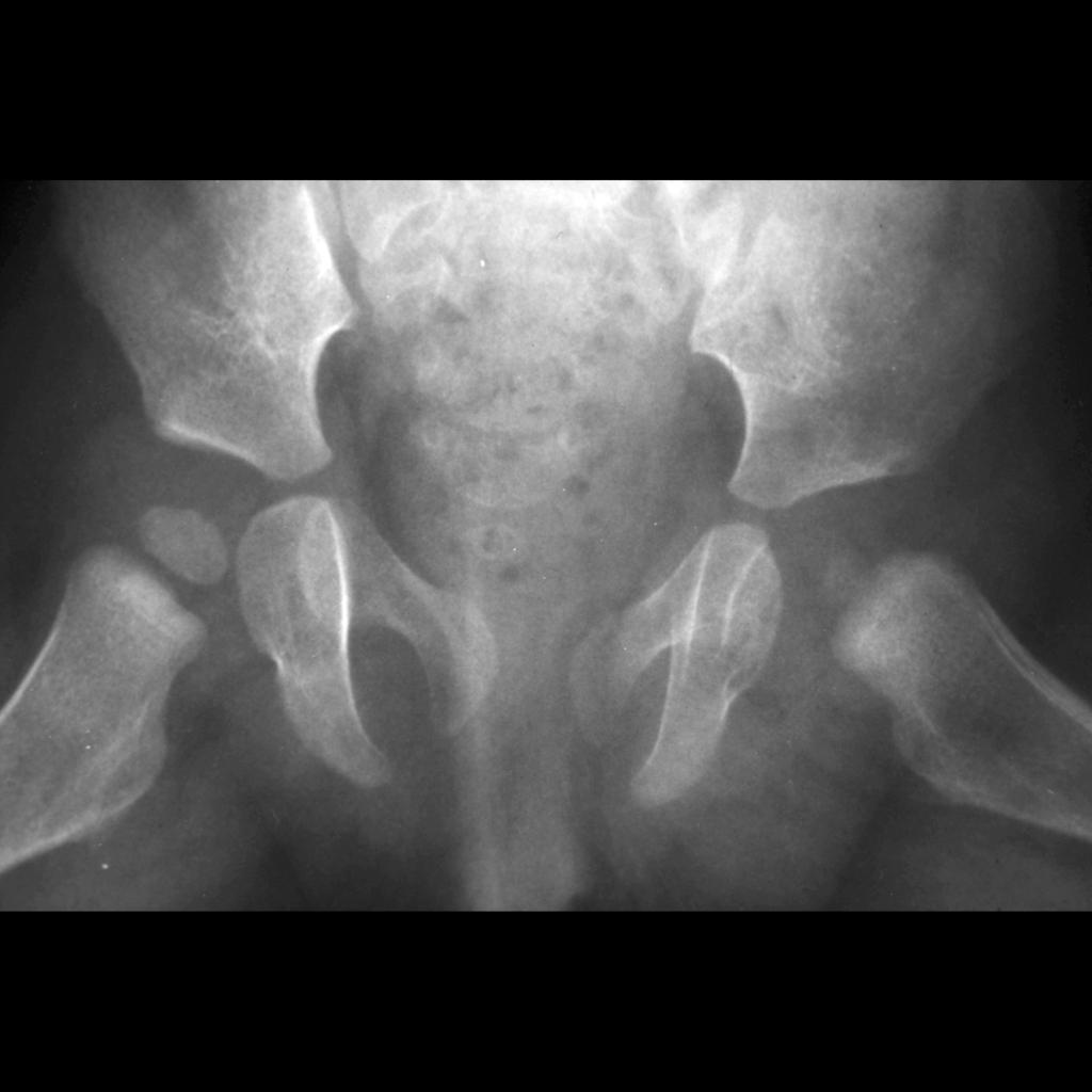 Radiograph of developmental dysplasia of the hip