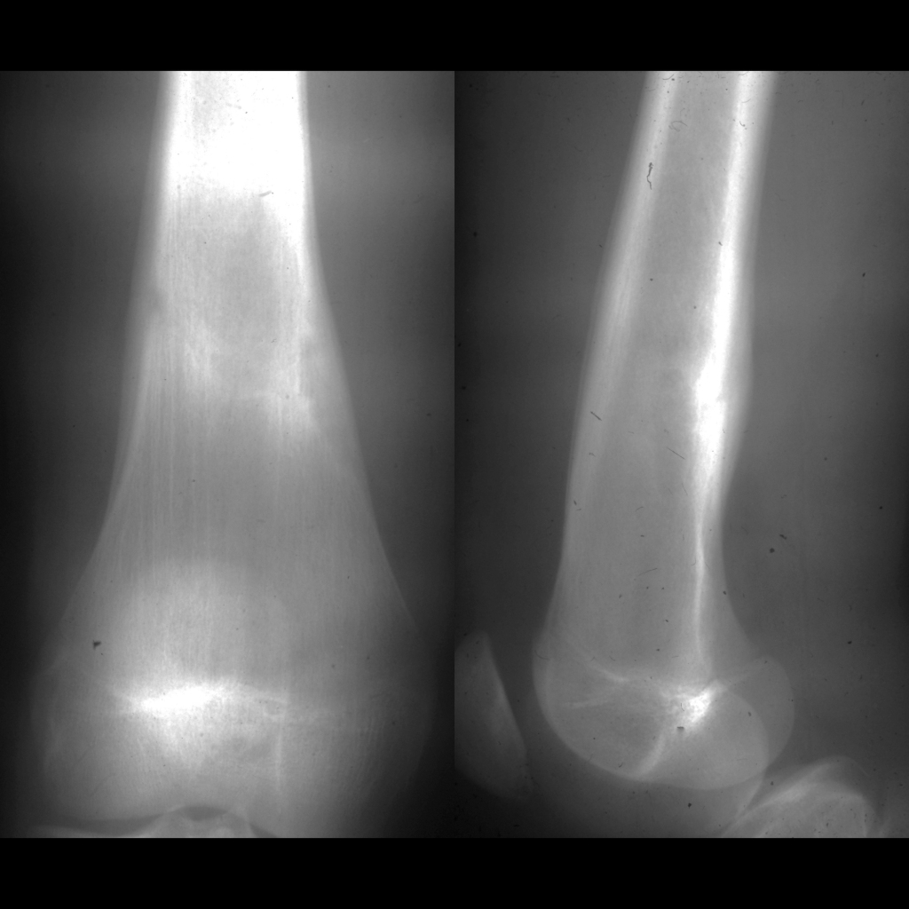 Radiograph of stress fracture of the femur