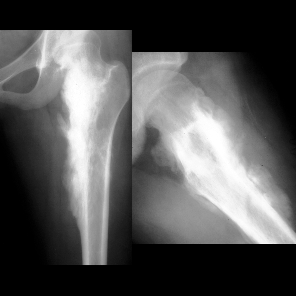 Radiograph of parosteal osteosarcoma of the femur