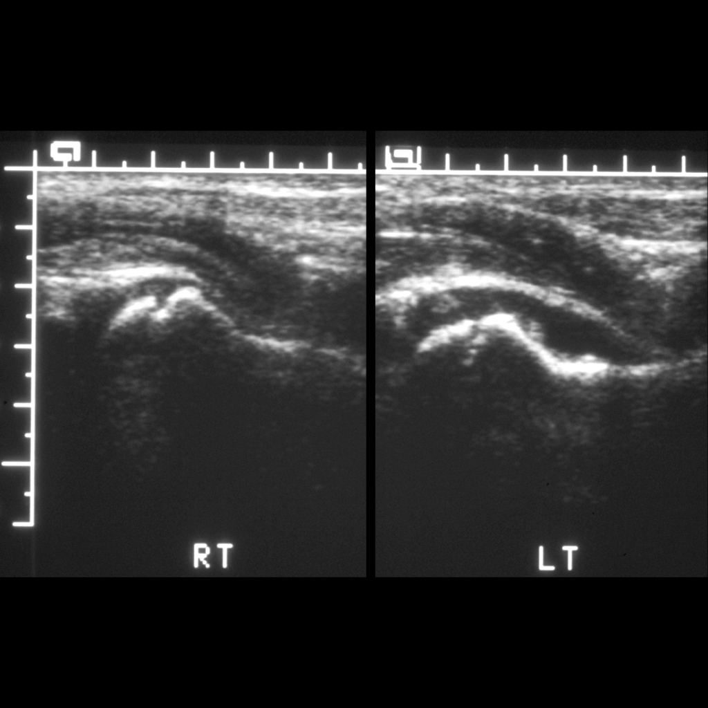 Ultrasound of transient synovitis of the hip