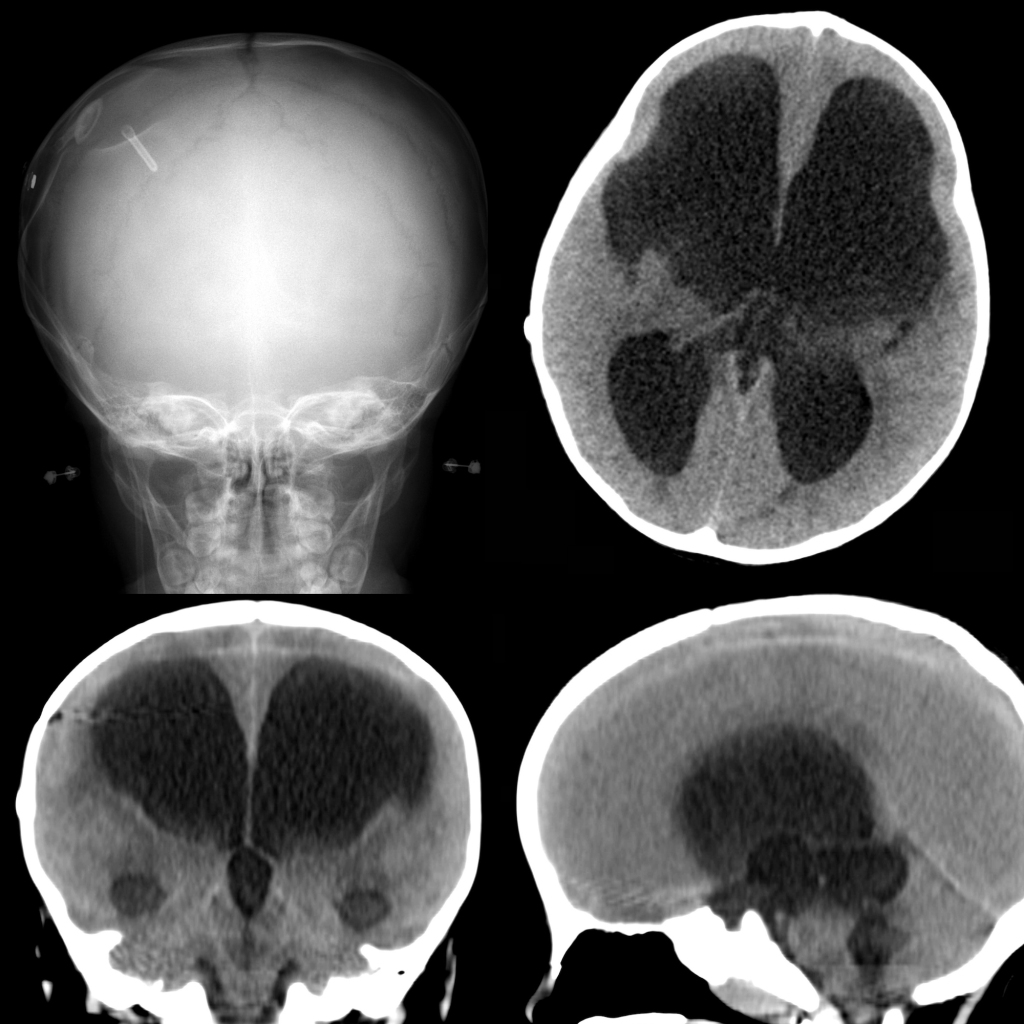 Radiograph and CT of ventriculoperitoneal shunt malfunction
