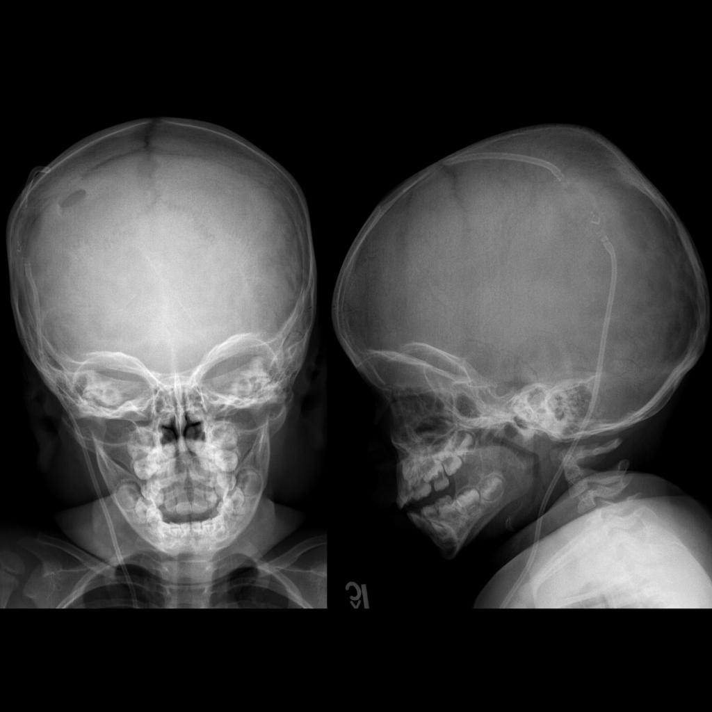 Radiograph of ventriculoperitoneal shunt malfunction