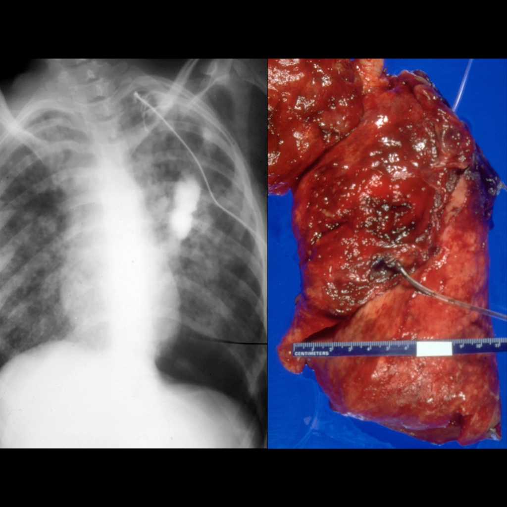 CXR of chest tube malposition with chest tube in the lung parenchyma