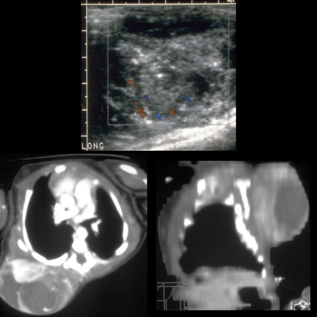 US and CT of infantile fibrosarcoma