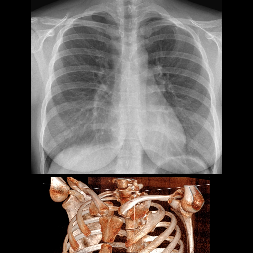 CXR and CT of rib fusion