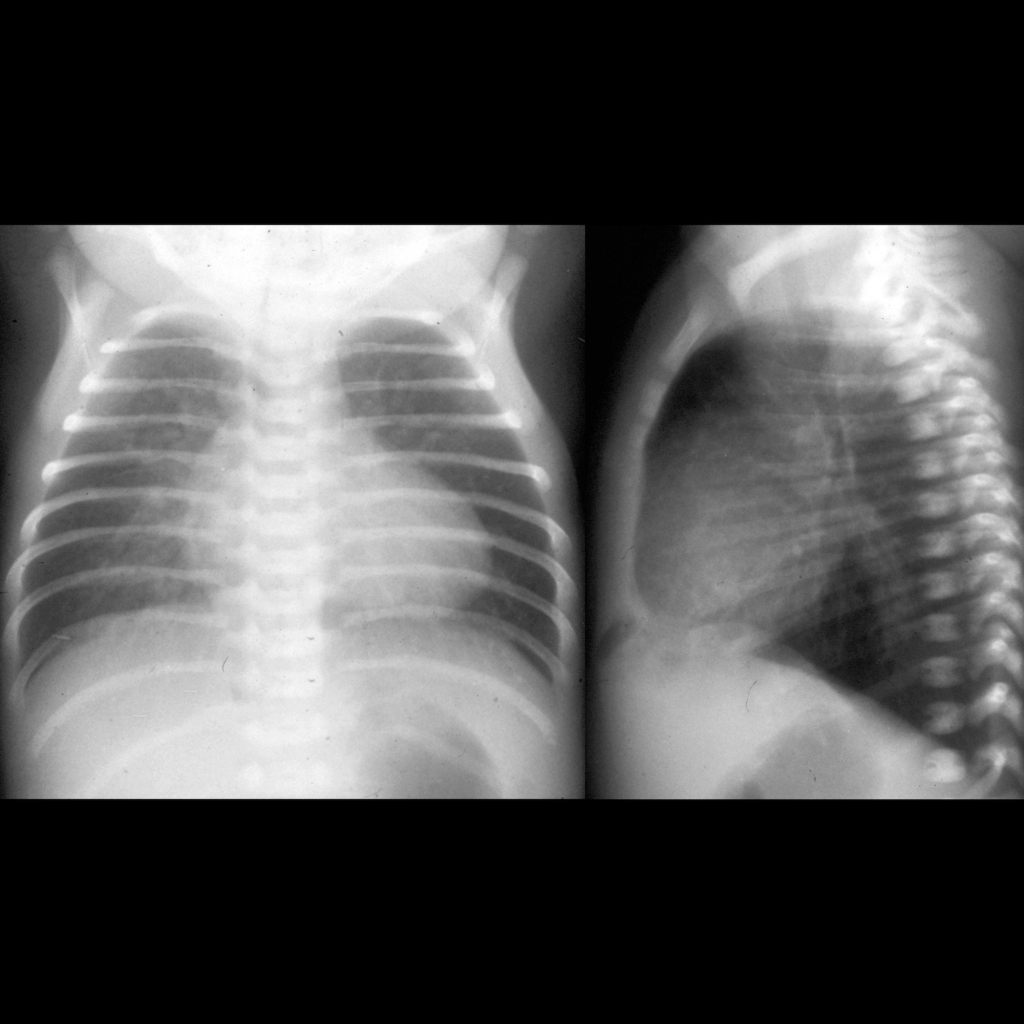 CXR of absent thymus in DiGeorge Syndrome