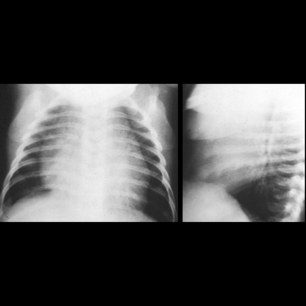 CXR of a prominent thymus