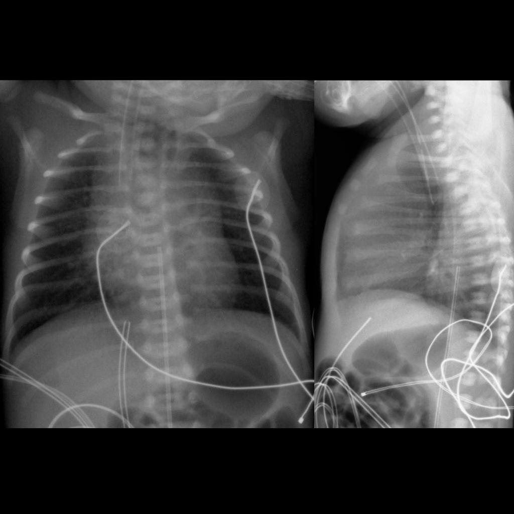 CXR of esophageal atresia