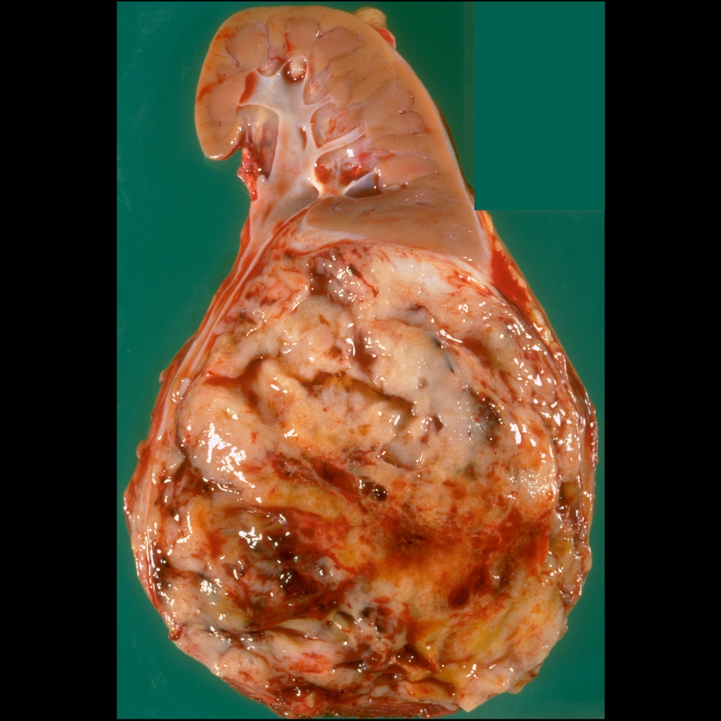 Gross pathological image of Wilms tumor