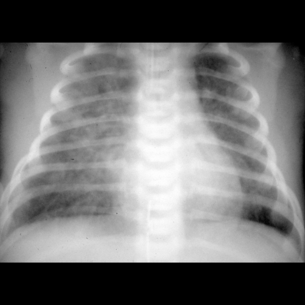 CXR of meconium aspiration syndrome