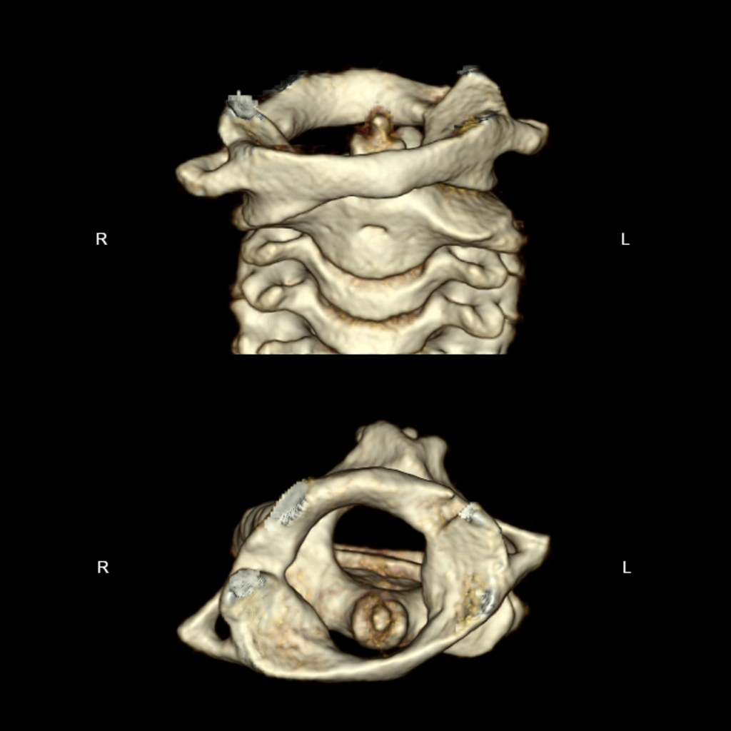 CT of atlanto-axial rotatory subluxation