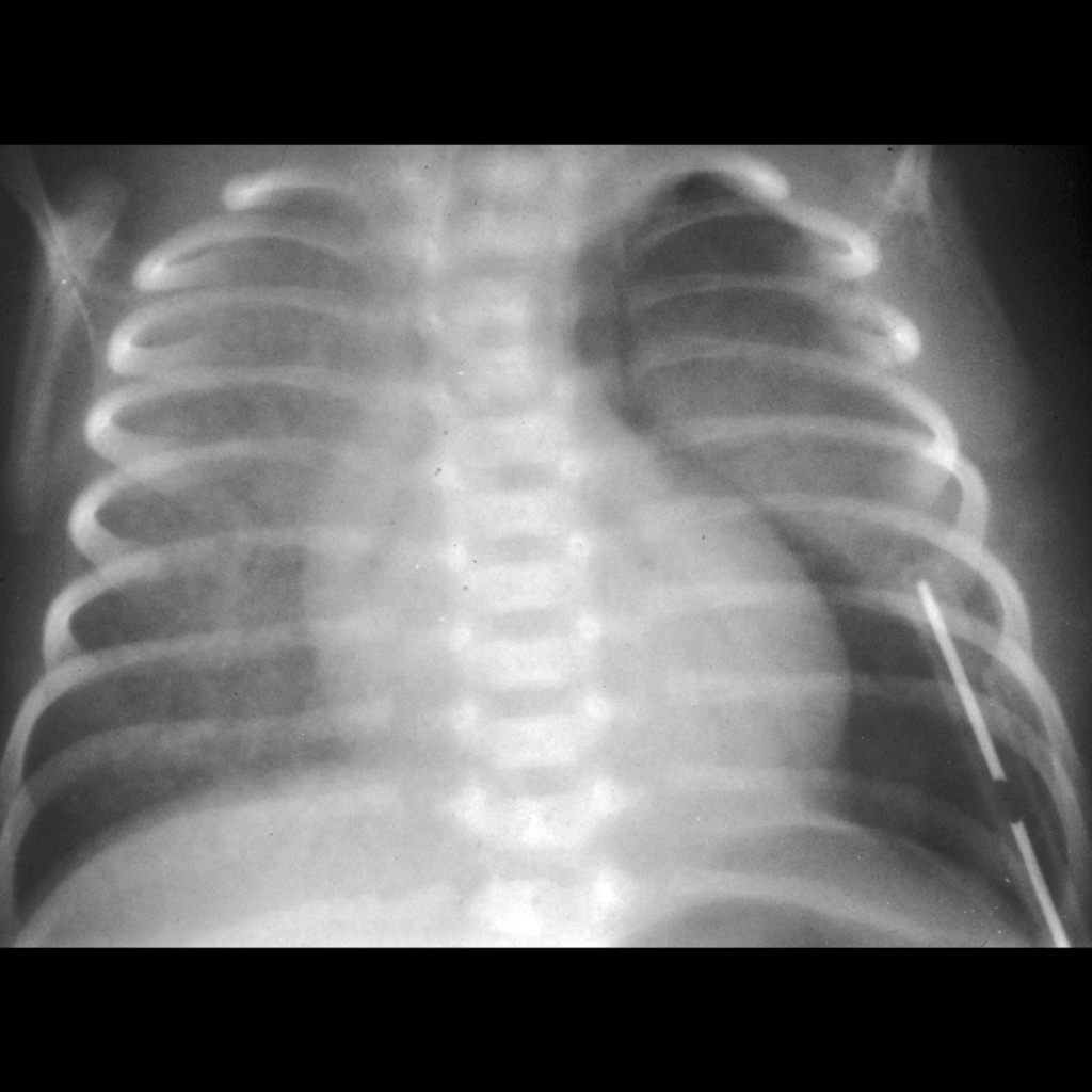 CXR of basilar pneumothorax in a patient with respiratory distress syndrome