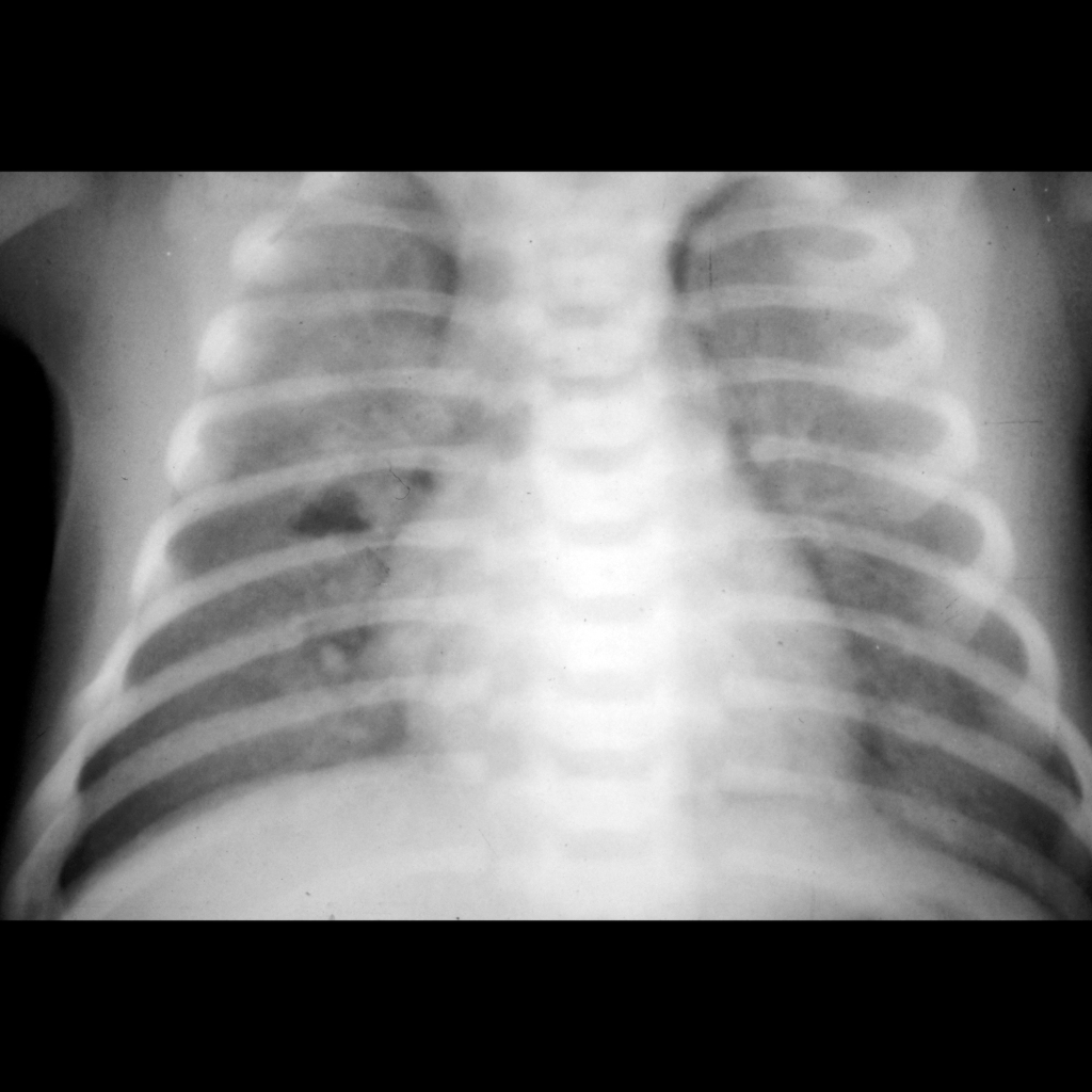 CXR of small bilateral pneumothoraces in patient with respiratory distress syndrome