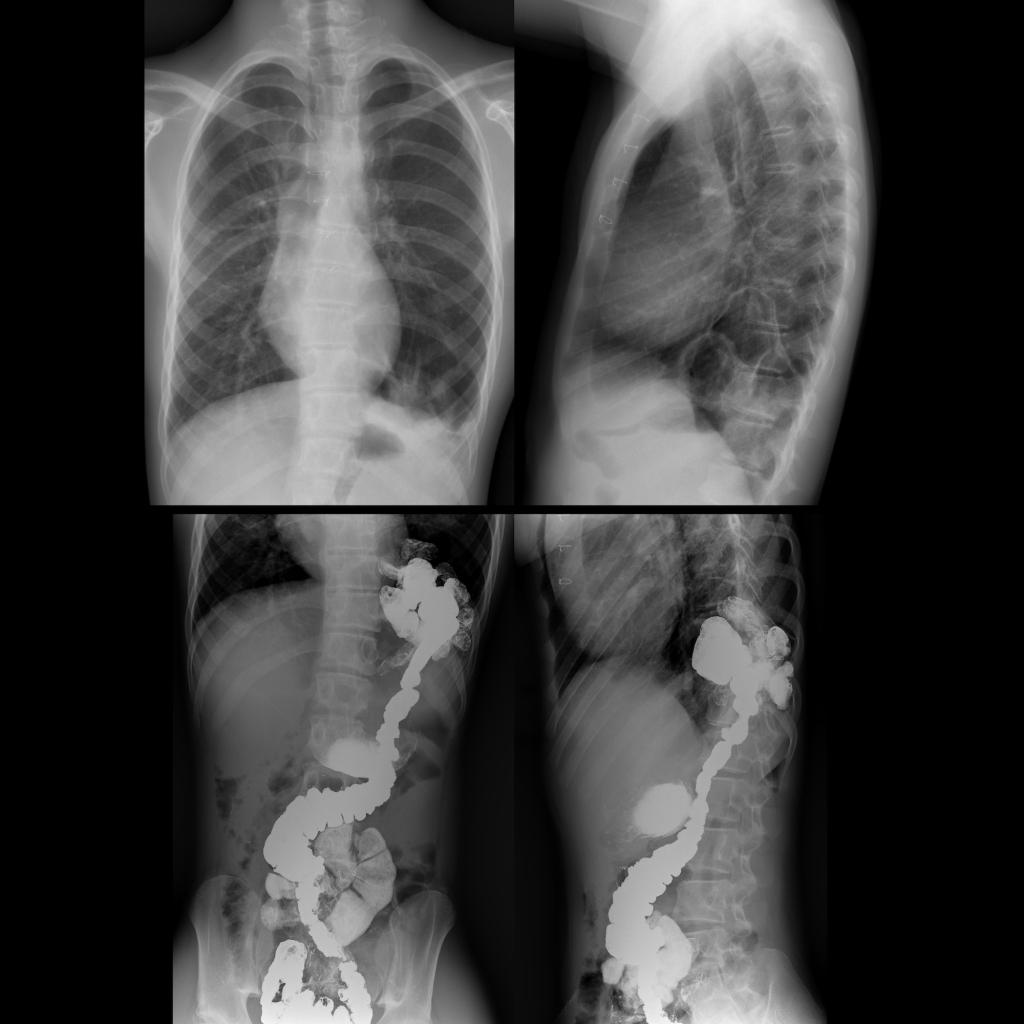CXR and upper GI of recurrent congenital diaphragmatic hernia / Bochdalek hernia