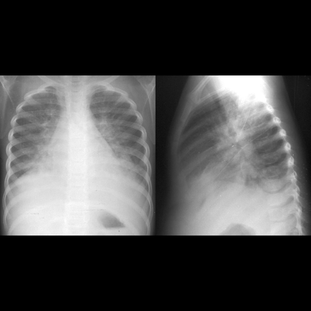 CXR of pulmonary edema in acute glomerulonephritis