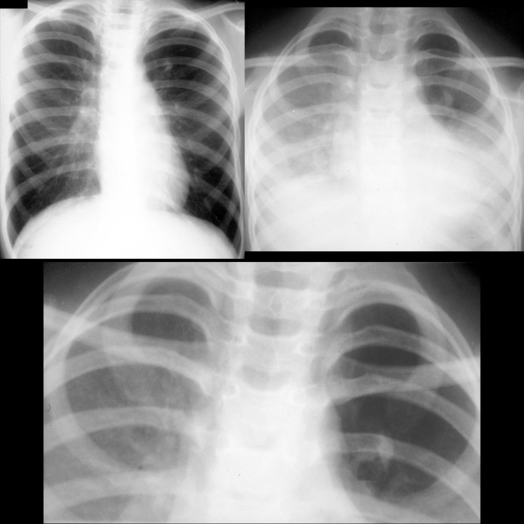 CXR of bronchial atresia