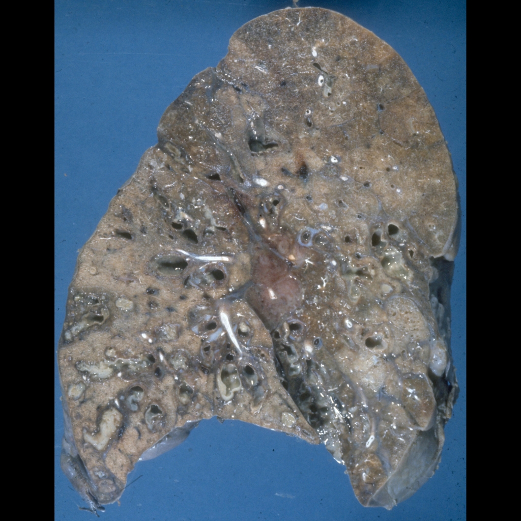 Gross pathological image of bronchiectasis in cystic fibrosis