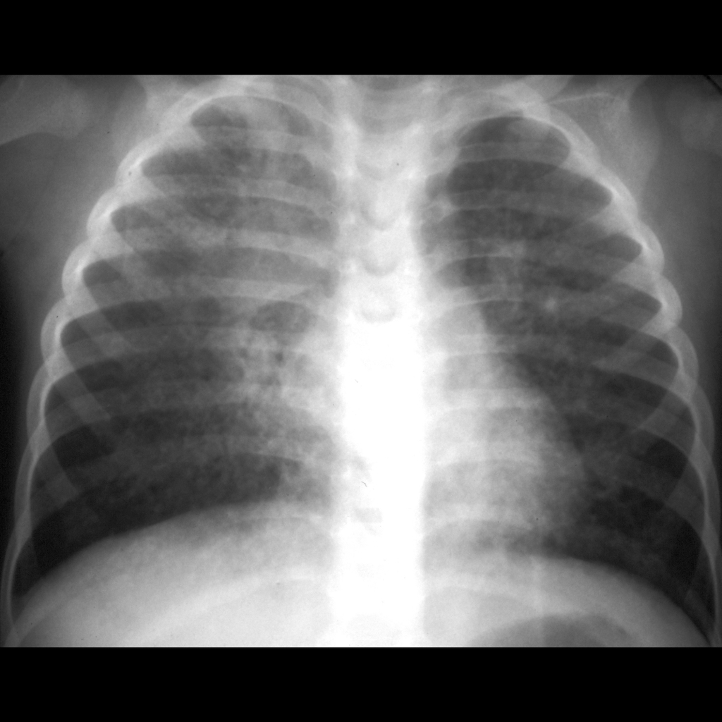 CXR of lymphocytic interstitial pneumonitis / LIP