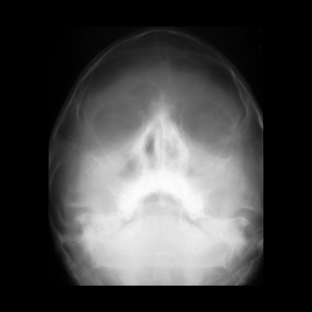Sinus radiograph of sinusitis in Kartagener syndrome