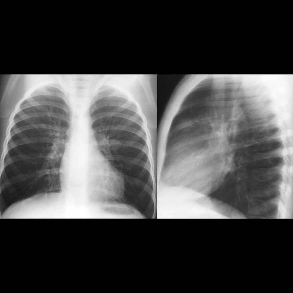 CXR of lung metastasis in Wilms tumor
