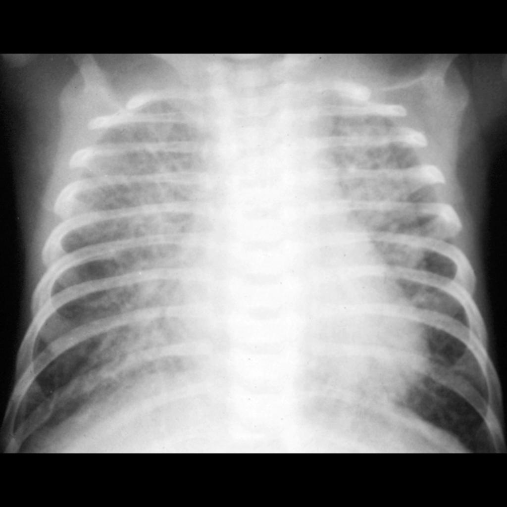 CXR of pulmonary edema in paroxysmal atrial tachycardia